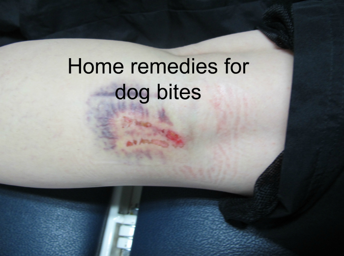 Home Remedies for Dog bite