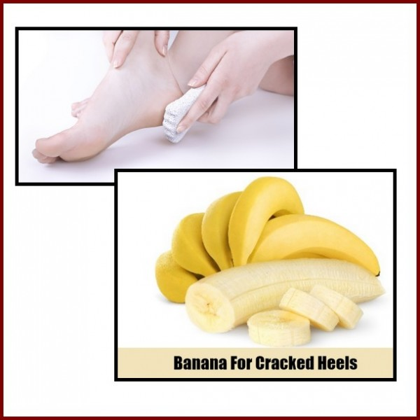 bananaforcrackedheels